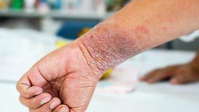درمان اگزما در طب سنتی